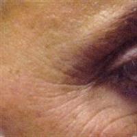 Yüz Sarkmasını Gidermenin Yöntemleri