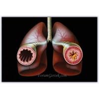 Bronşial Astım Nöbetleri | Tedavisi