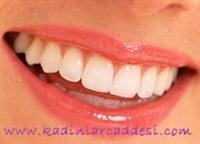 Bembeyaz Dişler Harika Gülüşler