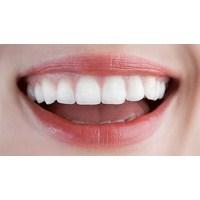Kişiliğinizi Diş Şekliniz Ele Veriyor...