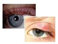 Gözdeki Küçük Tehlike: Arpacık
