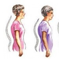 Osteoporoz Ve Egzersiz Nasıl Yapılır ?