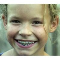 Çocuklarda Diş Teli Kullanımının Önemi...