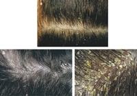Kepekli Saçlardan Kurtulun
