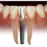 Diş İmplantı Ne Zaman Ve Nasıl Yapılır?