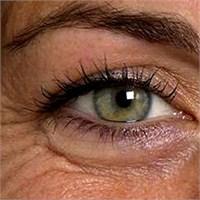 Göz Kırışıklığı İçin Ne Yapmalı ?