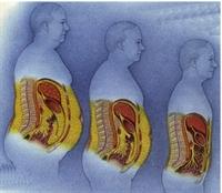 Karaciğer Yağlanması Sorunu Siroza Dönüşebilir Mi