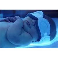 Bebeklerde Sarılık Ve Tedavisi