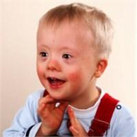 Çocuklarda Zeka Geriliği Ve Tedavisi