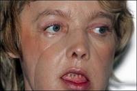 Çin'de Yüz Nakli Ameliyatı