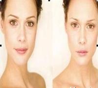 Kontür Makyajla Değişim