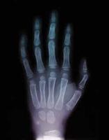 İngilizler 'röntgen' Dedi