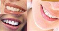 Ağız Ve Diş Bakımında Bilmediklerimizz