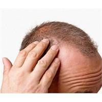 Saç Dökülmesine ve Cilde İyi Geliyor
