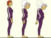 Osteoporoz İçin Bitkisel Çözümler