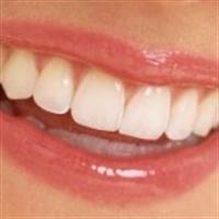 Diş Beyazlatmanın Ayrıntıları