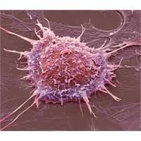 Rahim Kanseri, Belirtileri Ve Teşhisi