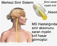 Ms Hastaları İçin Bitkisel Destek