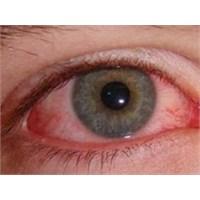 Göz Kanlanması Neden Olur Nasıl Geçer?