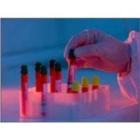 Kordon Kanı Kök Hücreleri Ve Klinikte Kullanımı
