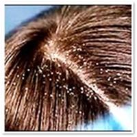 Saç Dökülmesi Ve Kepek İçin Öneriler