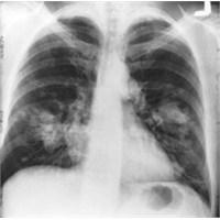 Erken Akciğer Kanseri Teşhisi