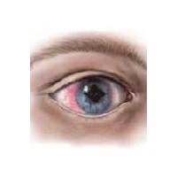 Göz Tansiyonunun Belirtileri