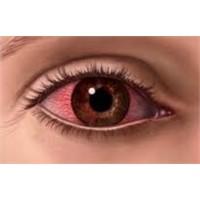 Kırmızı Göz Hastalığına Dikkat