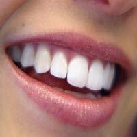 Diş İmplantı Nedir, Nasıl Yapılır