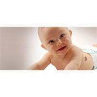 Doğum Lekesi Oluşumunda Etkili 3 Temel Sebep