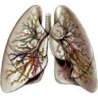 Akciğer Hastalıkları Nelerdir?