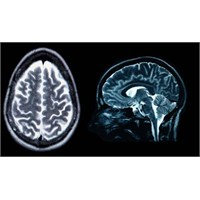 ' Beyin Yazılımlarında' Büyük Hata