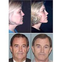 Estetik Yüz Ameliyatları