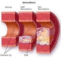 Kolesterolün Yükselmesinin Nedenleri