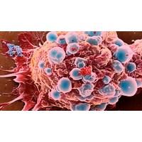 Tehlikeli Kanser Tuba Kanseri