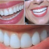 On Adımda Bembeyaz Dişlere Ulaşmak İster Misiniz ?