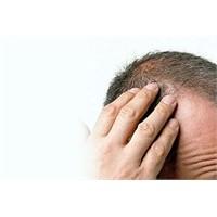 Erkek Der Ki: Saçın Mı Var Huzurun Var..