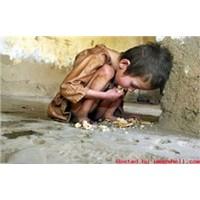 Somali'deki Açlık Krizine Seyirci Kalmayın