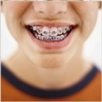 Çarpık Diş Tedavisi Nasıl Gerçekleşir ?