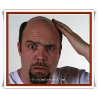Saç Dökülmesi Tedavisinde Bilinmeyen Gerçekler