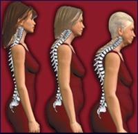 Zayıf Kadınlarda Osteoporoz Riski