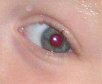 Fotoğraflarda Gözler Niçin Kırmızı Çıkar?