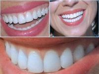 Bembeyaz Dişlere Sahip Olun