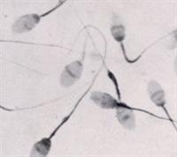 Sperm Hücreleri Güçlensin