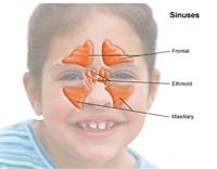 Dr.ömer Coşkun Sünizit ( Sinuses ) İçin Bitkisel K