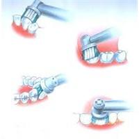 Diş Fırçalama Teknikleri Ve Diş Sağlığı