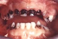 Diş Çürüğü Nedir Nasıl Önlenir ?