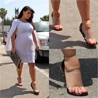 Kim Kardashian Ve Şiş Ayakları