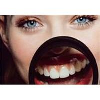 Laminate Veneerler diş kaplama