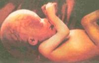Bir Bebeğin Anne Karnindaki 280 Günü
